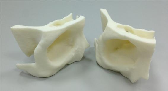 3D列印骨骼成品