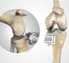 顱顏面骨醫療 Midface Titanium System