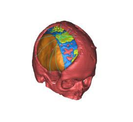 3D醫療軟體